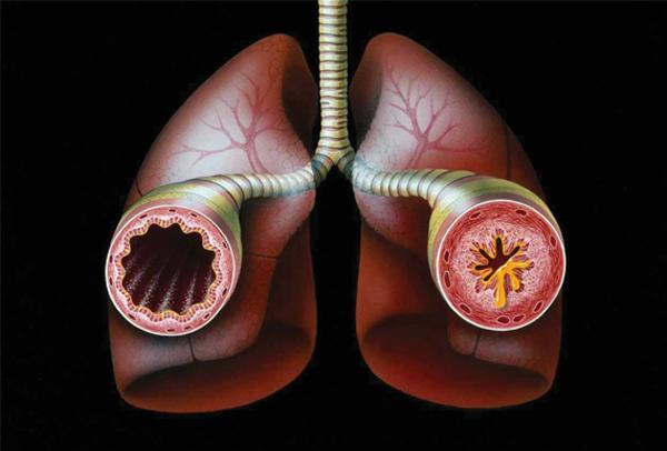 Asthma_Bronchial-3.jpg