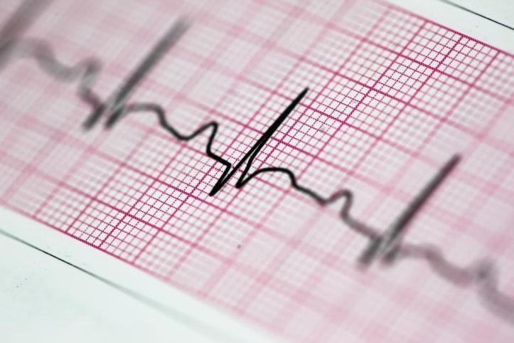 electrocardiogram-ecg-or-heartbeat-reading.jpg